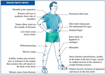 Sport injury image
